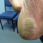 what are plantar warts