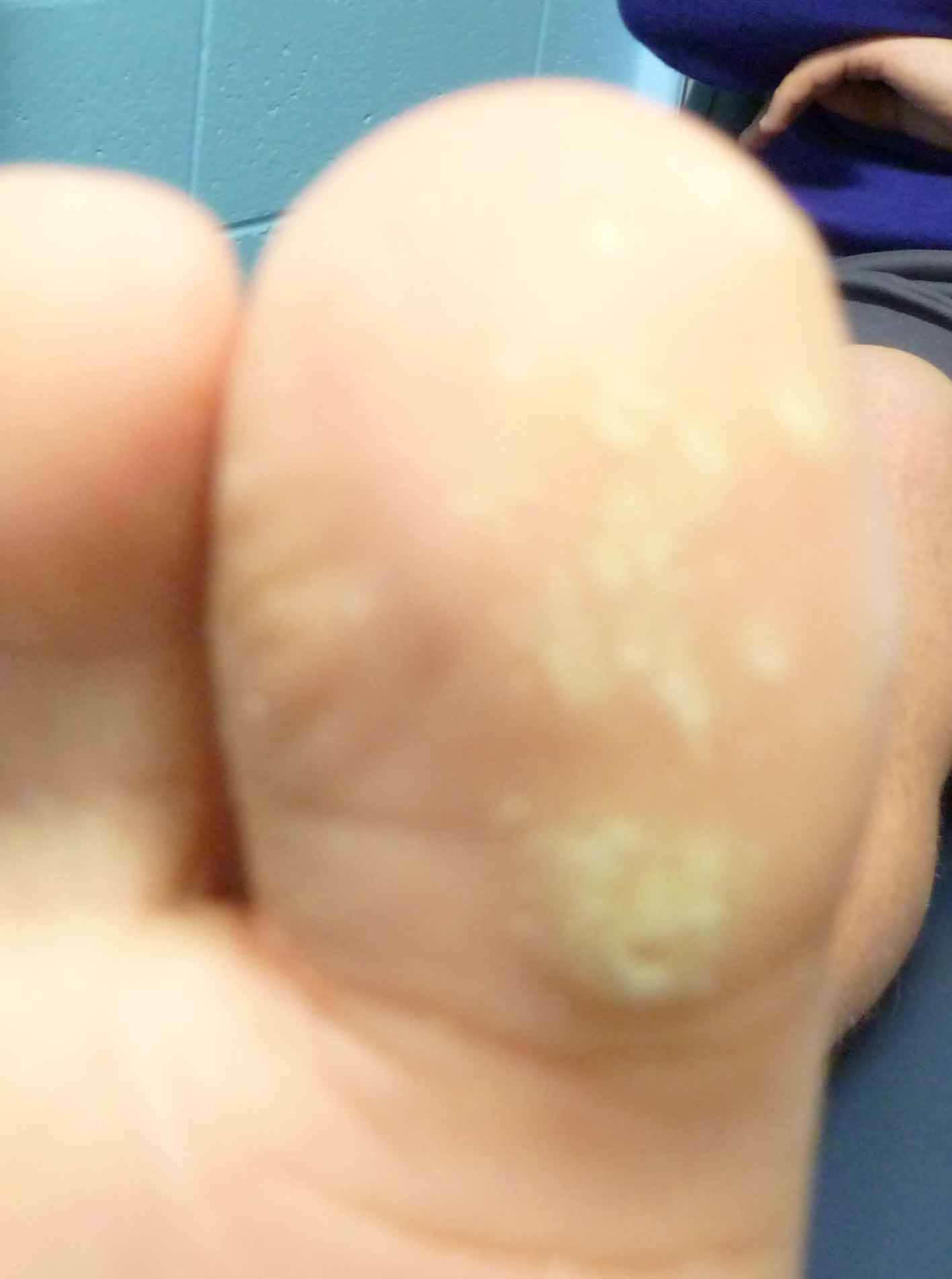Treatment for plantar wart on toe