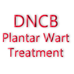 DNCB Plantar Wart Treatment