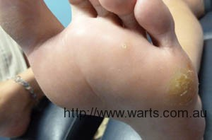 plantar wart on foot